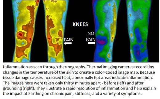 earthing-vs-knee-pain1